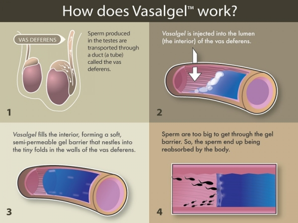 Vasalgel explainer graphic (Tech Times)